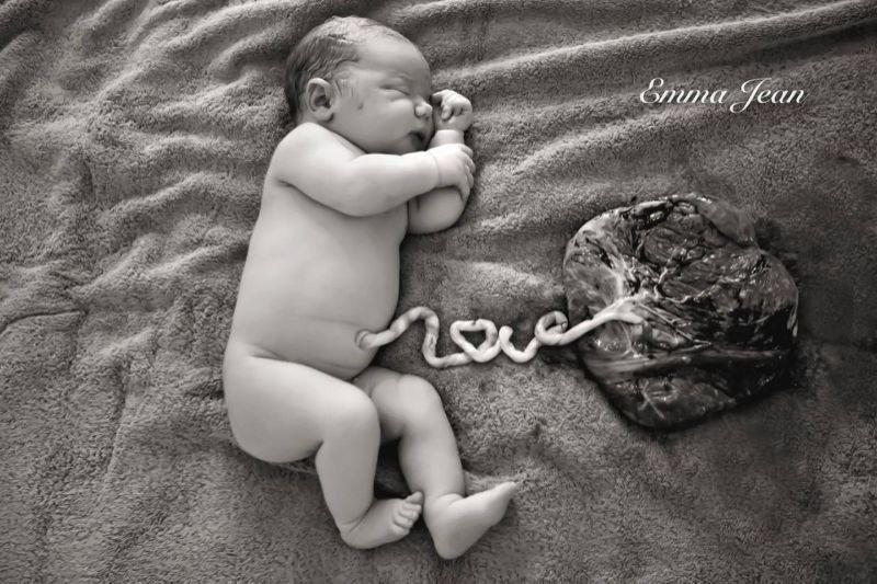 umbilical-cord-love-placenta
