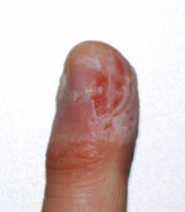 Fingerbite_01