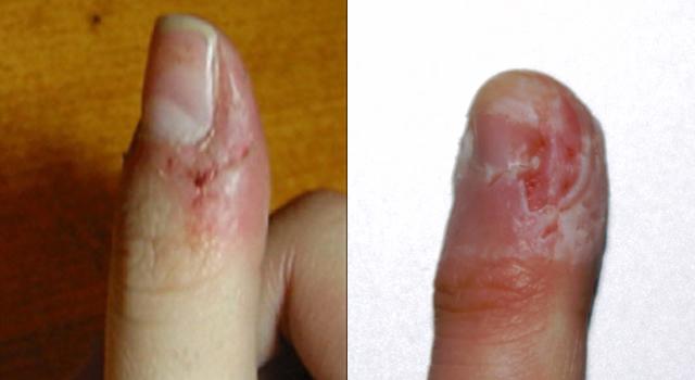 Fingerbite_03