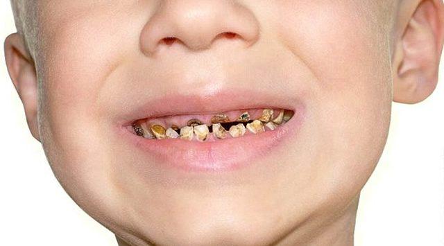 3歳児が11本も抜歯!無知な親のあきれた子育て