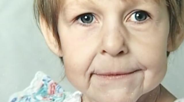 新生児 早老 症 様 症候群